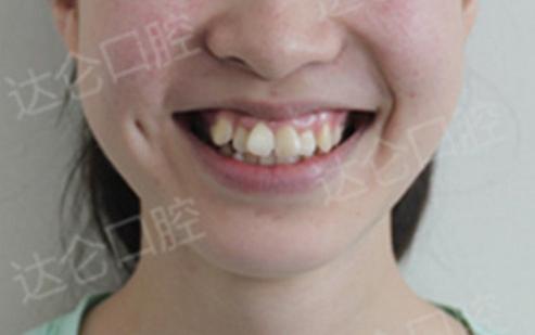 杭州牙齿矫正日记20200225