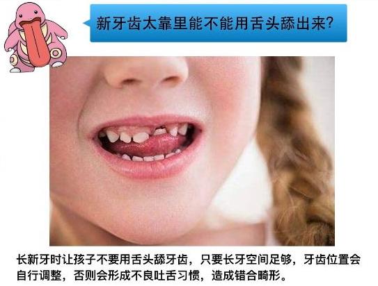 孩子换牙期得了蛀牙怎么办?