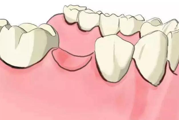 缺牙有什么危害呀?