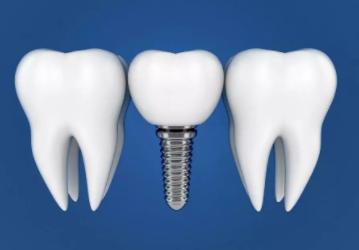 什么是固定义齿、活动义齿、种植义齿?