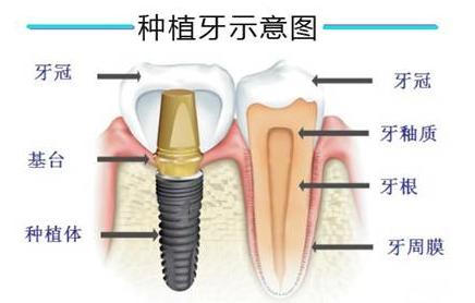 杭州网友,种植牙和假牙的区别是什么?