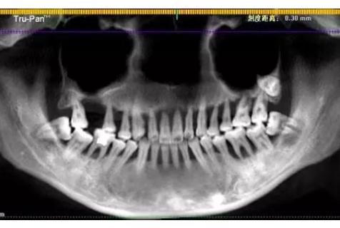 杭州口腔医院看牙记,28岁一排牙被拔光