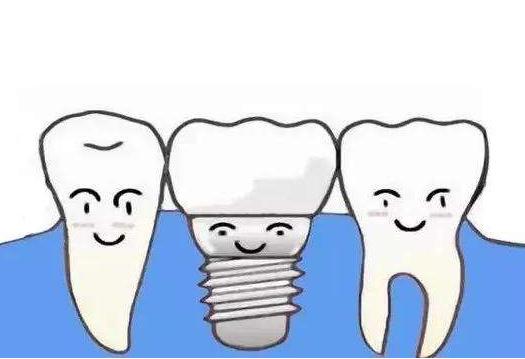 杭州网友,种一颗牙要多少钱
