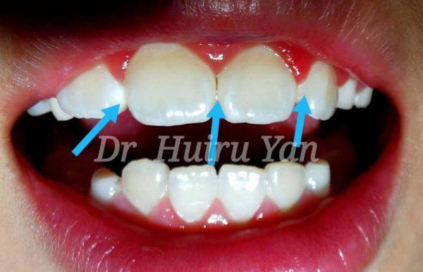 杭州网友,牙齿脱矿是缺钙吗