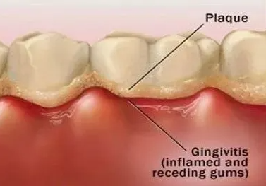 杭州网友,怀孕期间的牙周病对孕妇胎儿有什么影响?