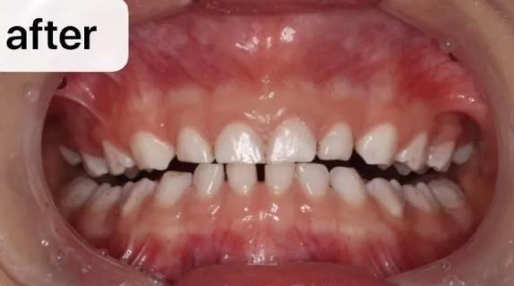 杭州网友,孩子还小需要定期洗牙吗
