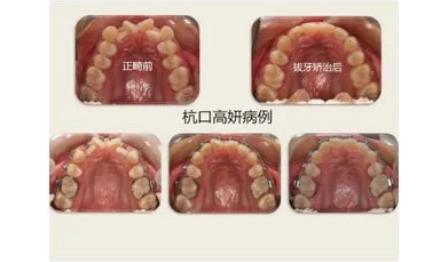 杭州网友,正畸拔牙后还需要种牙吗?