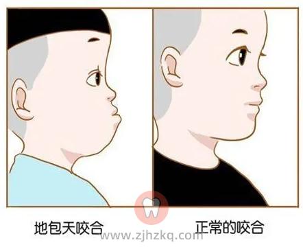 杭州网友,儿童早期矫治一般几岁开始?
