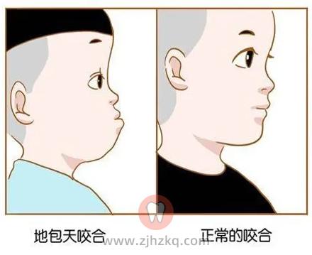 杭州网友,孩子长下巴地包天怎么治疗?多大治疗?