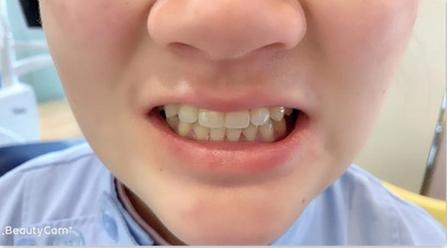 杭州牙齿矫正之前牙微矫正日记