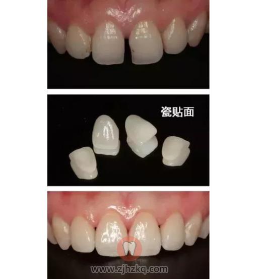 杭州牙缝变大