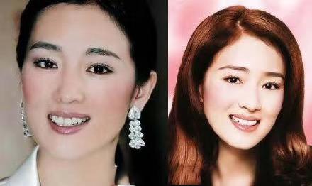杭州网友,牙齿矫正到底有没有必要?