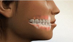 杭州孩子矫正牙齿