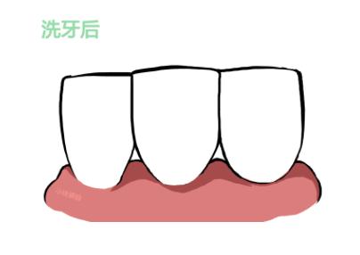 杭州洗牙专题