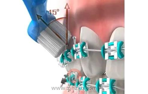 杭州网友,牙齿矫正期间如何正确刷牙?