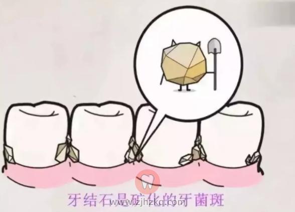 杭州牙结石