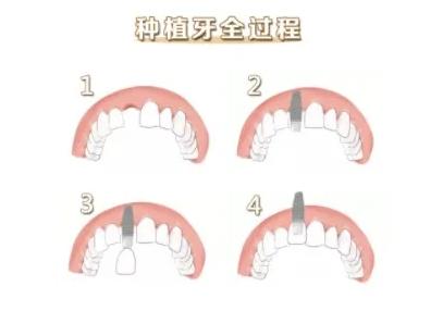 杭州种牙完整过程