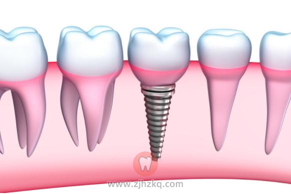 杭州种植牙术后注意事项