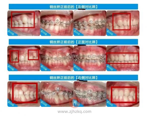 杭州钢丝牙套矫正