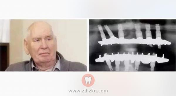 种植牙使用寿命多少年
