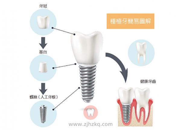 杭州口腔医院种植牙价格清单