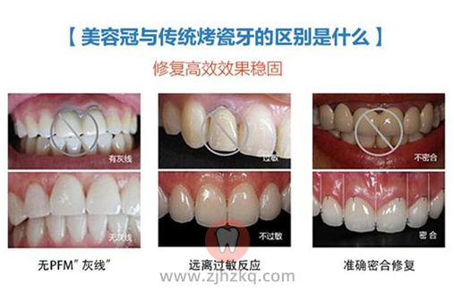 杭州口腔全瓷牙价格表