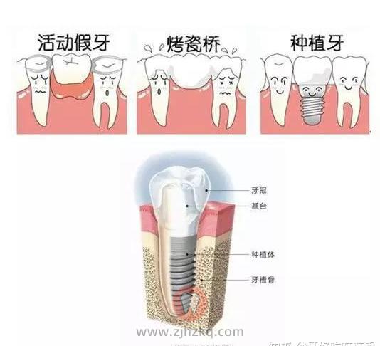 牙冠安装过程视频