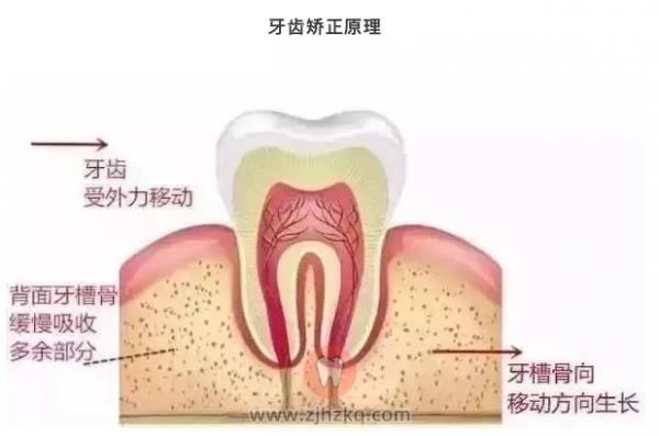 牙齿矫正危害风险