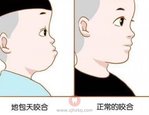 杭州地包天预防