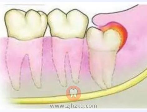 智齿牵引牙齿矫正