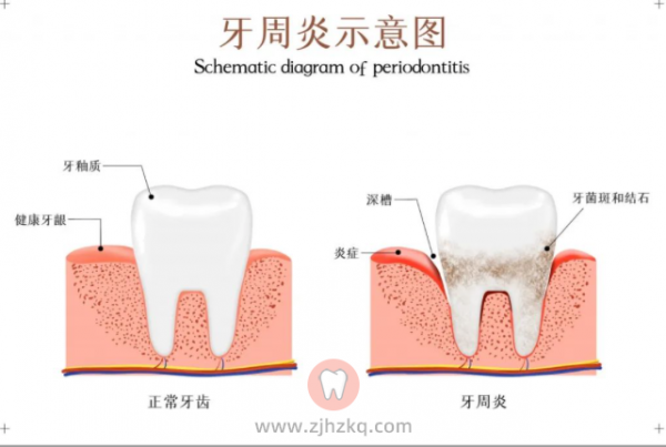 孕期牙周炎怎么办