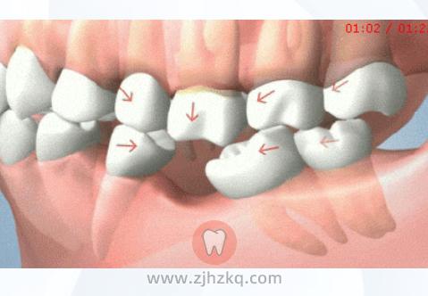 牙缺失后一定要种牙吗?