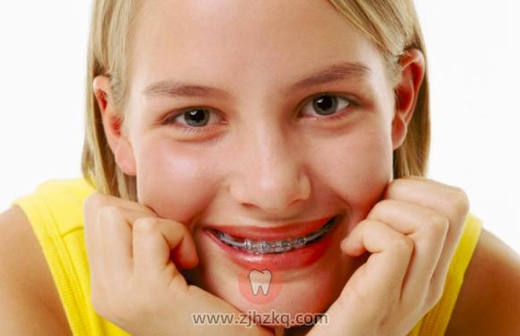 正畸会让牙齿松动吗?