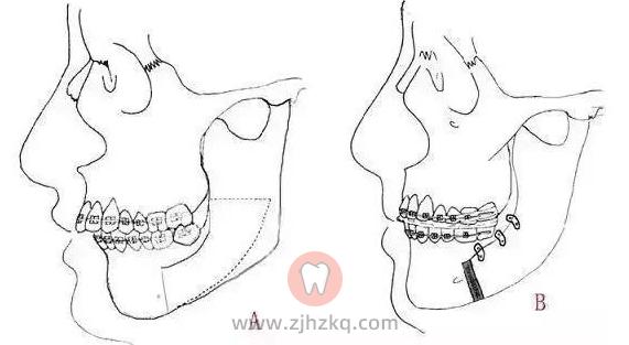 杭州牙齿矫正如何缩短正畸治疗时间?