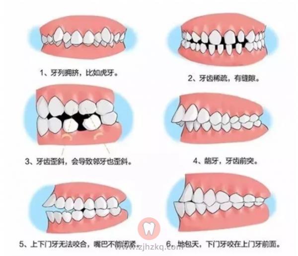 什么是错颌畸形