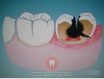 如何避免发生蛀牙?