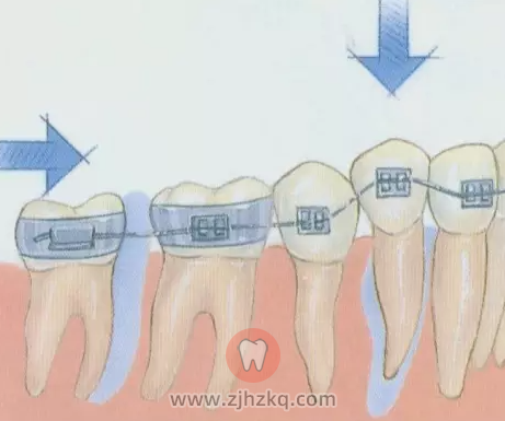 正畸和种牙可以同时进行吗?