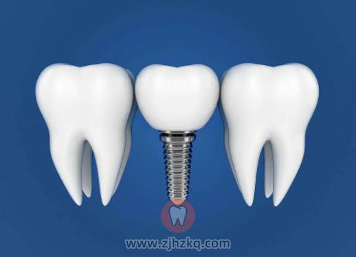 杭州牙齿种植牙如何维护保养?