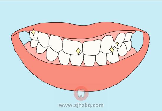 杭州牙齿不整齐怎么办?
