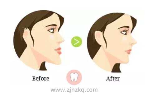 什么是牙颌畸形有哪些种类和图片