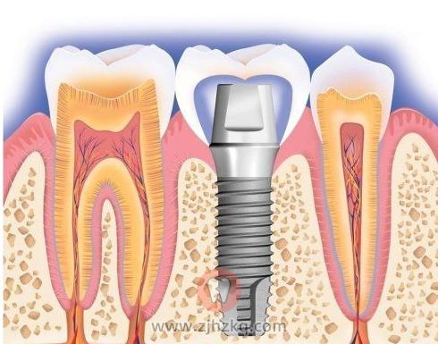 杭州种牙记我的种植牙手术亲身经历