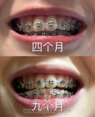 浙大口腔医院牙齿矫正正畸看牙记201812