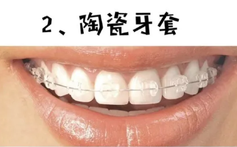 隐形牙套矫正陶瓷自锁金属自锁区别