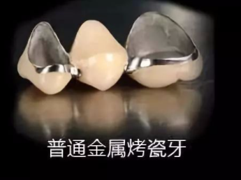 几百块的便宜烤瓷牙好不好可以用吗?