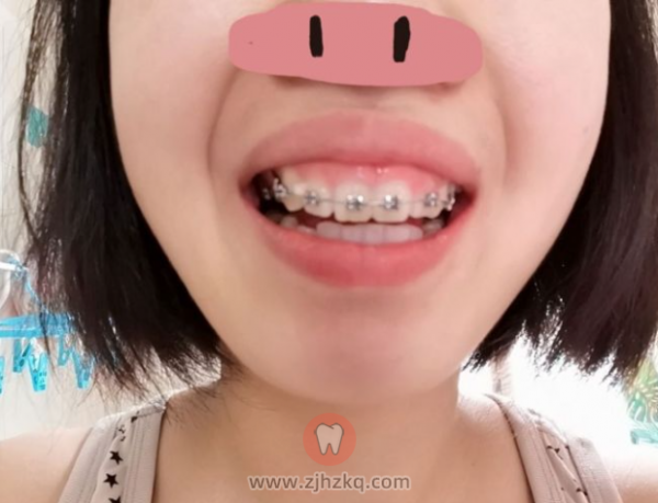 杭州博凡口腔卢海平医生正畸看牙记