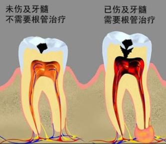 牙齿烂到什么程度要做根管治疗
