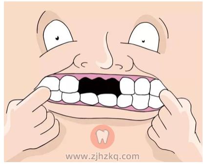 为什么医生说冬天是种牙的好时机