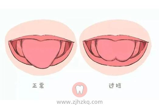杭州儿童舌系带短及如何治疗系列专题