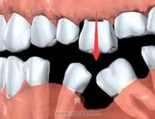 单颗缺牙怎么办