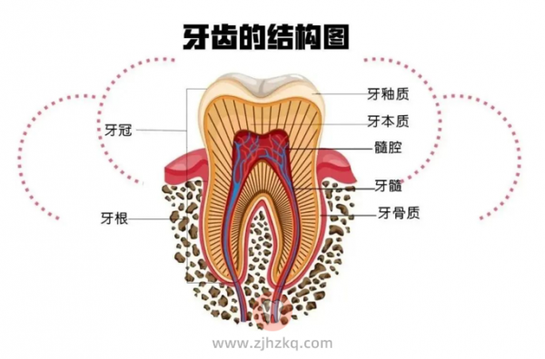 早期龋齿症状图片
